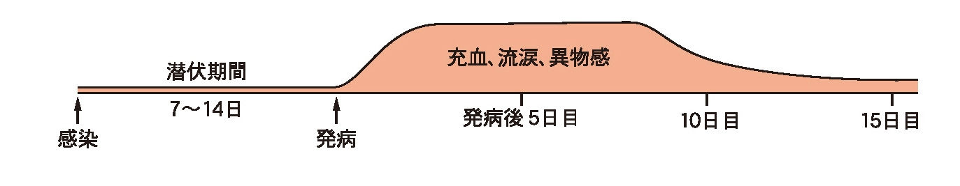 流行性角結膜炎