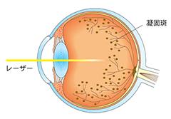 1網膜光凝固術(もうまくひかりぎょうこじゅつ)