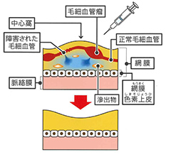 2抗VEGF阻害剤硝子体内注射
