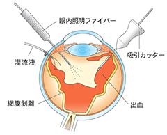 3硝子体手術