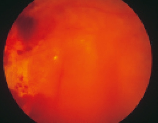 第3段階「増殖糖尿病網膜症」